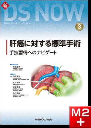 新DS NOW 3 肝癌に対する標準手術
