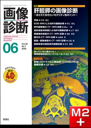 画像診断 2020年6月号(Vol.40 No.7)肝胆膵の画像診断-おさえておきたいモダリティ別ポイント