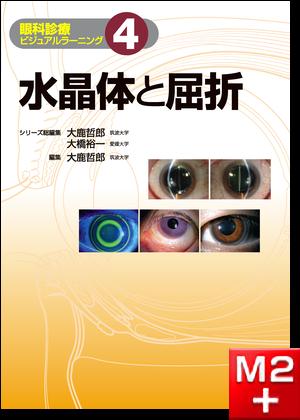 水晶体と屈折〈眼科診療ビジュアルラーニング4〉