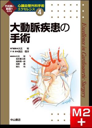 大動脈疾患の手術 <心臓血管外科手術エクセレンス④> [動画付き]