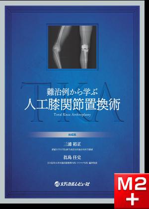 難治例から学ぶ人工膝関節置換術