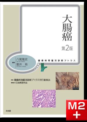 腫瘍病理鑑別診断アトラス 大腸癌 第2版