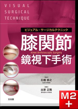ビジュアル・サージカルテクニック 膝関節鏡視下手術