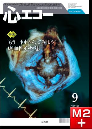 心エコー 2019年9月号(20巻9号)もう一回学んでみよう!虚血性心疾患