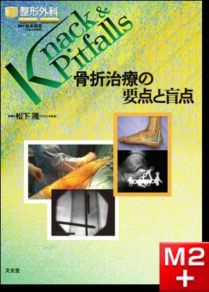 整形外科 Knack & Pitfalls 骨折治療の要点と盲点
