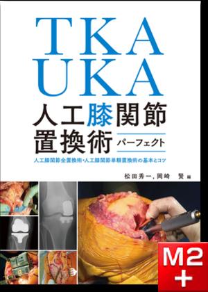 TKA・UKA 人工膝関節置換術パーフェクト~人工膝関節全置換術・人工膝関節単顆置換術の基本とコツ