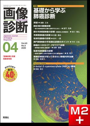 画像診断 2020年4月号(Vol.40 No.5)基礎から学ぶ肺癌診断