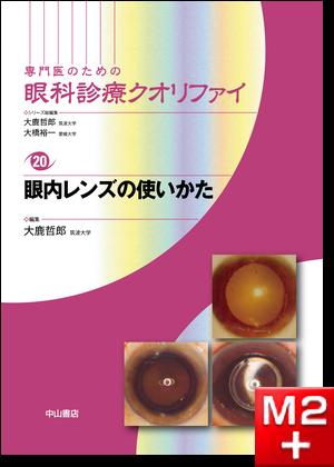 眼内レンズの使い方〈専門医のための眼科診療クオリファイ20〉