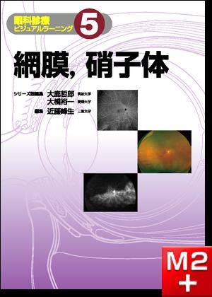 網膜,硝子体〈眼科診療ビジュアルラーニング5〉