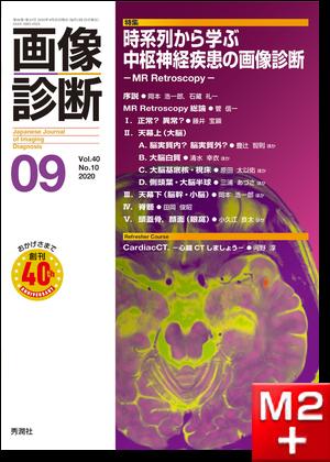 画像診断 2020年9月号(Vol.40 No.10)時系列から学ぶ中枢神経疾患の画像診断 -MR Retroscopy-