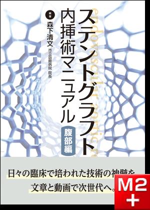 ステントグラフト内挿術マニュアル 腹部編