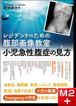 レジデントのための 腹部画像教室【小児急性腹症の見方】