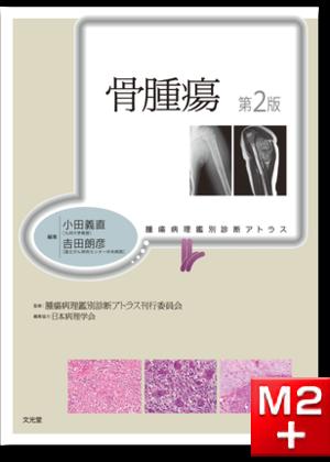 腫瘍病理鑑別診断アトラス 骨腫瘍 第2版