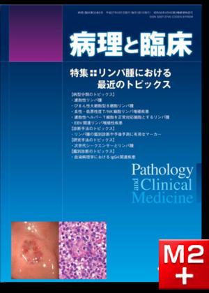 病理と臨床 2015年 5月号(33巻5号)リンパ腫における最近のトピックス