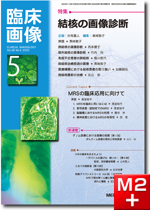 臨床画像 2020年5月号 特集 結核の画像診断