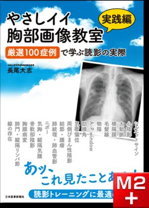やさしイイ胸部画像教室【実践編】~厳選100症例で学ぶ読影の実際