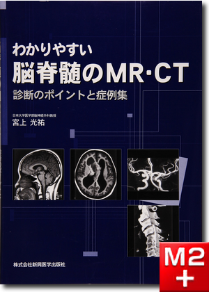 わかりやすい脳脊髄のMR・CT
