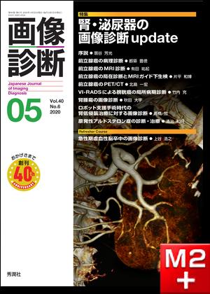 画像診断 2020年5月号(Vol.40 No.6)腎・泌尿器の画像診断update