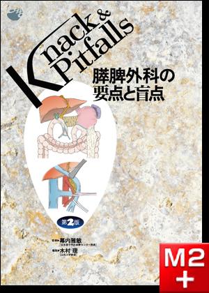 Knack & Pitfalls 膵脾外科の要点と盲点 第2版