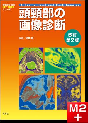 画像診断別冊 KEY BOOKシリーズ 頭頸部の画像診断 改訂第2版
