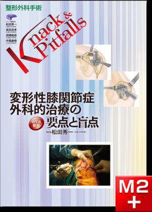 整形外科手術 Knack & Pitfalls 変形性膝関節症 外科的治療の要点と盲点