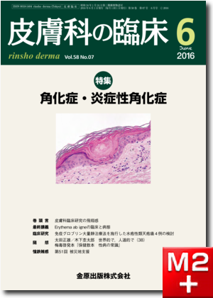 皮膚科の臨床 2016年6月号 58巻7号 特集 角化症・炎症性角化症【電子版】