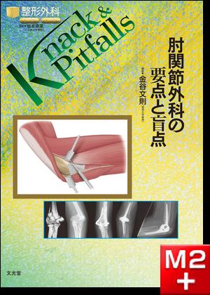 整形外科 Knack & Pitfalls 肘関節外科の要点と盲点