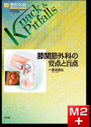 整形外科 Knack & Pitfalls 膝関節外科の要点と盲点