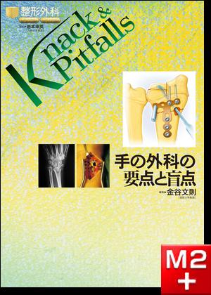整形外科 Knack & Pitfalls 手の外科の要点と盲点