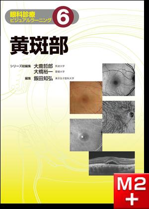 黄斑部〈眼科診療ビジュアルラーニング6〉