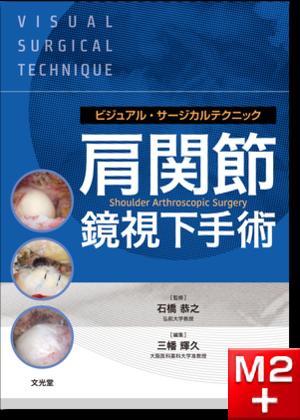 ビジュアル・サージカルテクニック 肩関節鏡視下手術