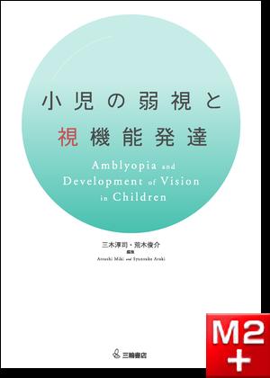 小児の弱視と視機能発達