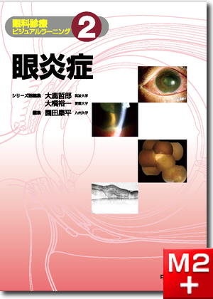 眼炎症〈眼科診療ビジュアルラーニング2〉