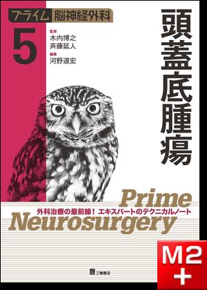 プライム脳神経外科 5 頭蓋底腫瘍